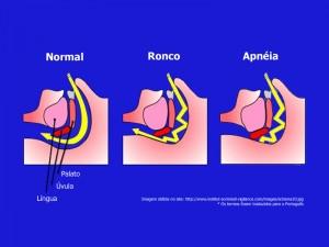 Tratamento para Apnéia do Sono